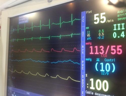 ¿Qué es la hipotensión intraoperatoria?